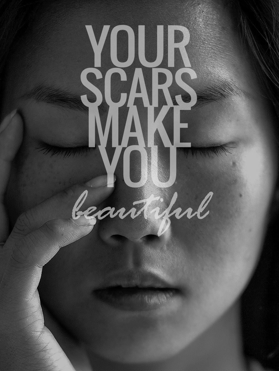 Your scars make you beautiful | inspiration | quotes